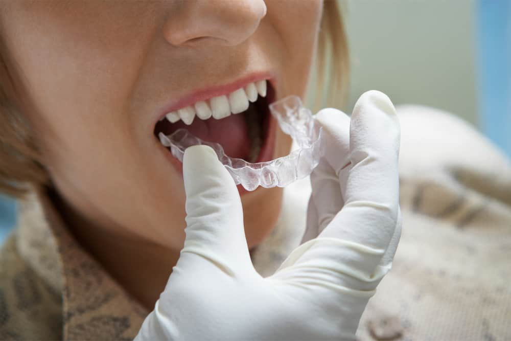 How to become a certified dental lab technician